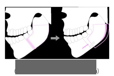 surgery_02