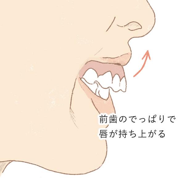 出っ歯とガミースマイル